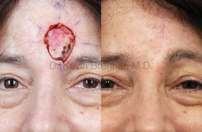 Skin Cancer Reconstruction Gallery - Patient 1482593 - Image 13