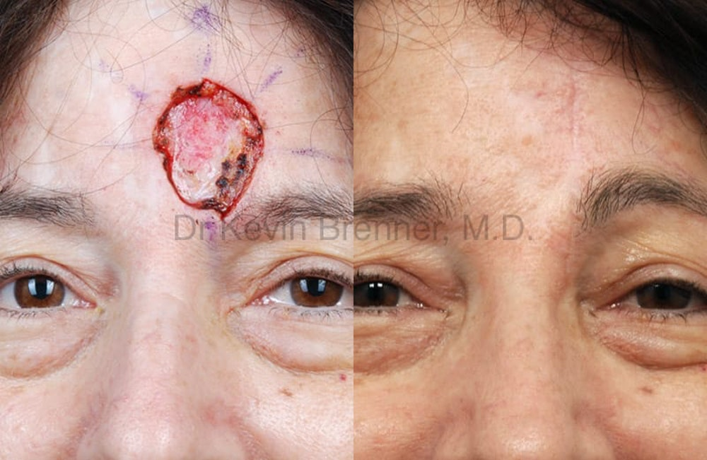 Skin Cancer Reconstruction Gallery - Patient 1482593 - Image 1