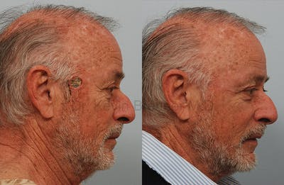 Skin Cancer Reconstruction Gallery - Patient 1482596 - Image 1