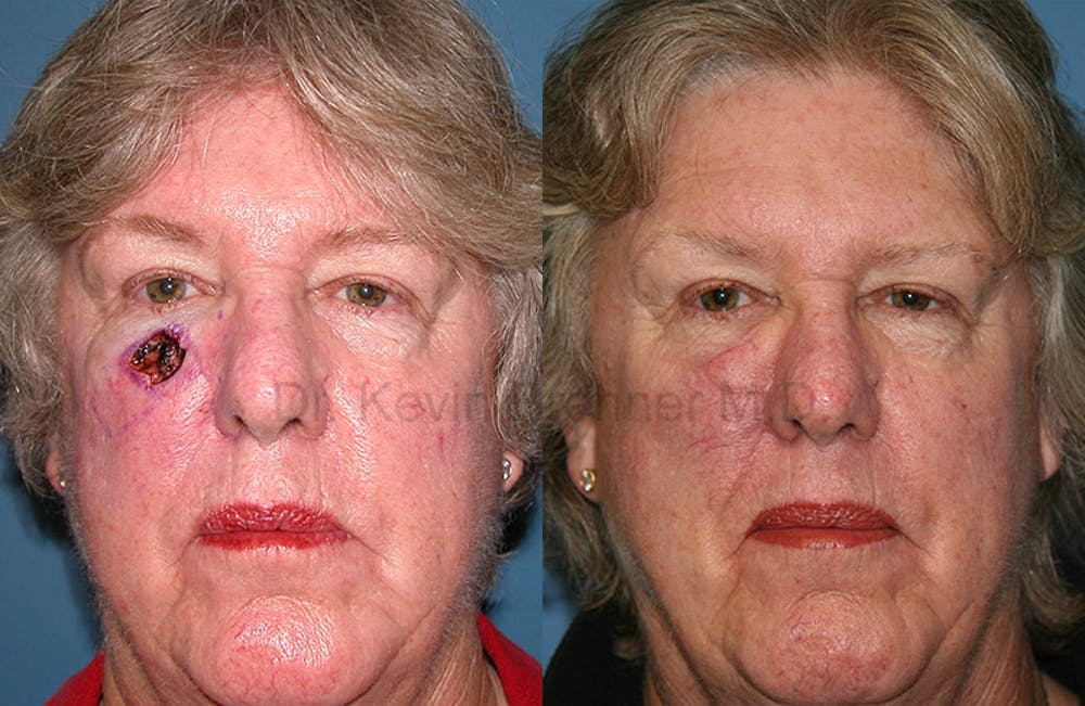Skin Cancer Reconstruction Gallery - Patient 1482597 - Image 1