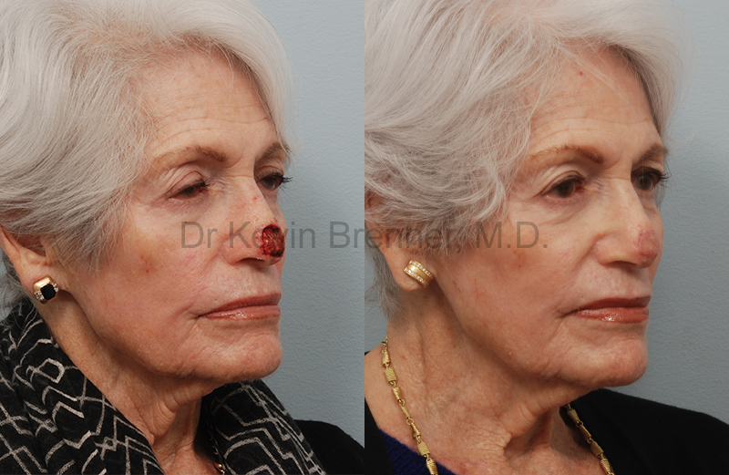 Skin Cancer Reconstruction Gallery - Patient 1482598 - Image 1