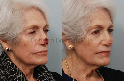 Skin Cancer Reconstruction Gallery - Patient 1482598 - Image 17