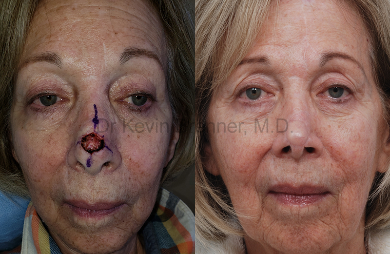 Skin Cancer Reconstruction Gallery - Patient 1482599 - Image 1