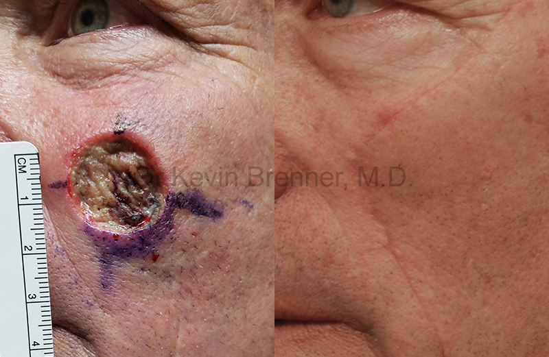 Skin Cancer Reconstruction Gallery - Patient 1482600 - Image 1