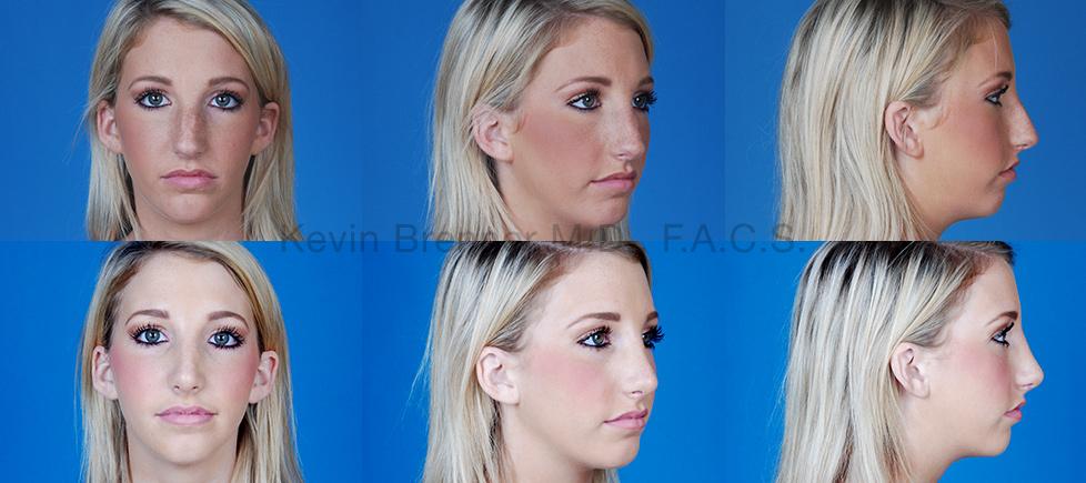 Nose Surgery Beverly Hills