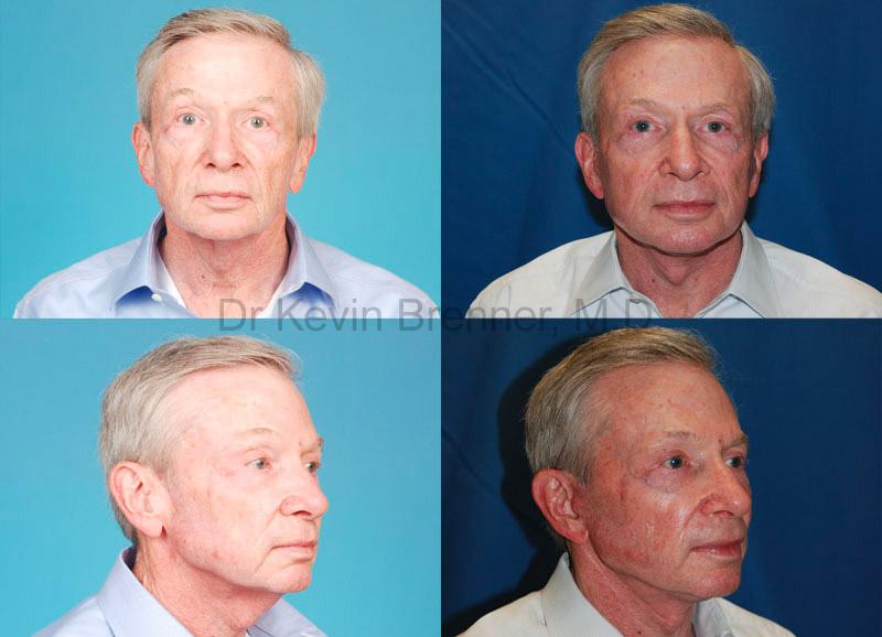 photo of facial resurfacing patient