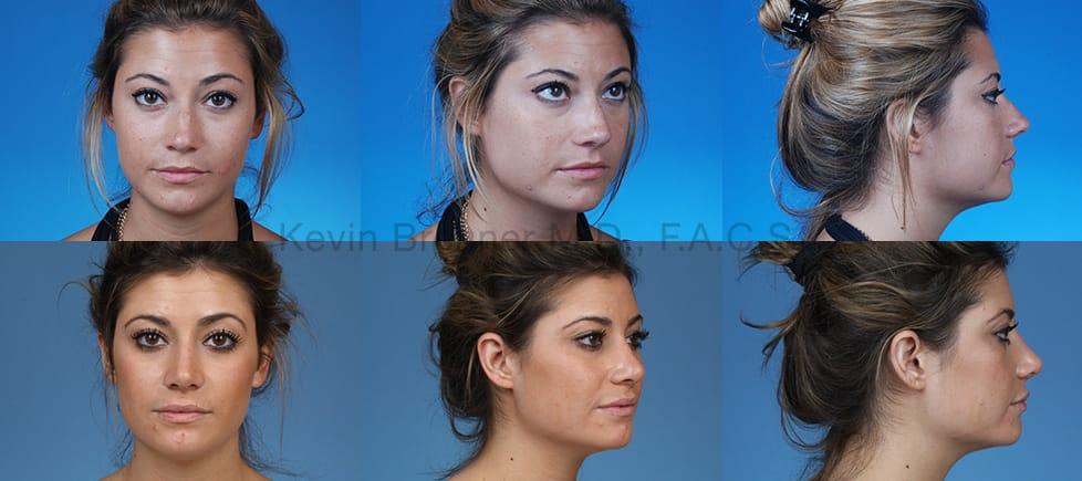 Before and after of beverly hills rhinoplasty patient 6