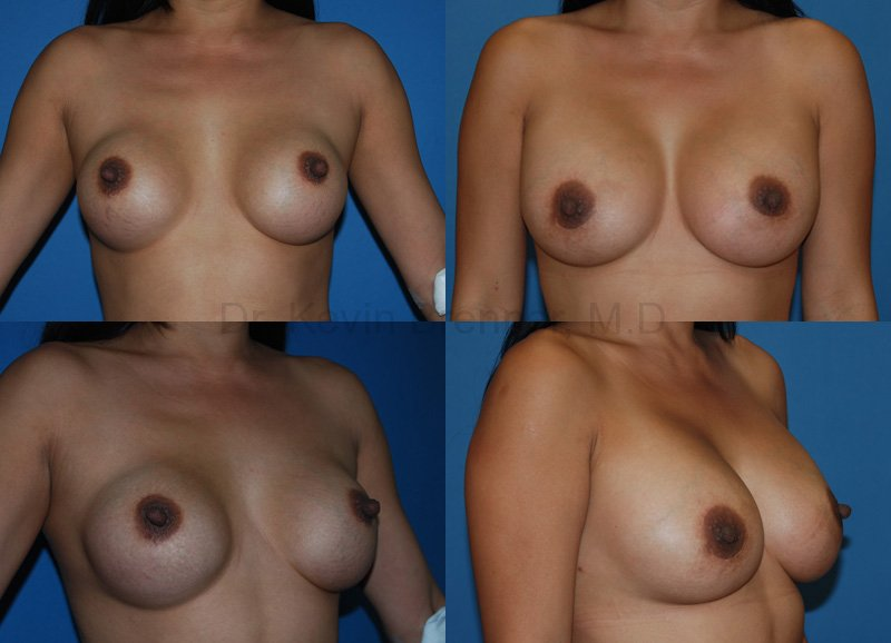 Before and after of Breast revision surgery in Beverly Hills