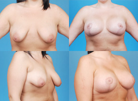 Breast Lift Results Beverly Hills