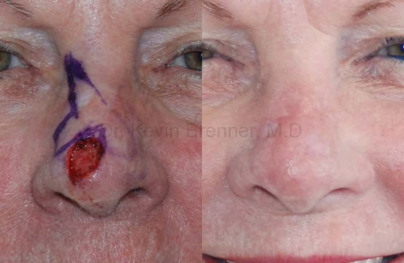 before and after of faical skin reconstsructions