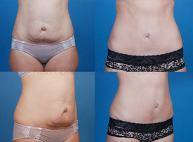 Tummy Tuck in Beverly Hills