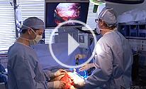 Complex Hernia Repair video