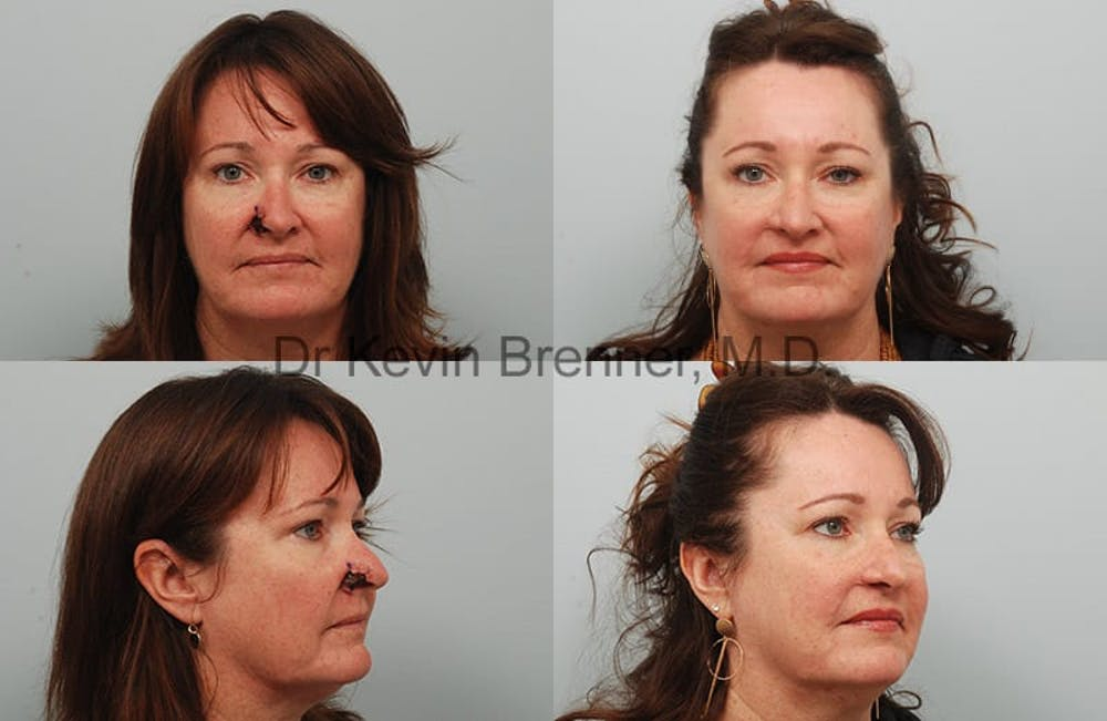Skin Cancer Reconstruction Gallery - Patient 1482594 - Image 1