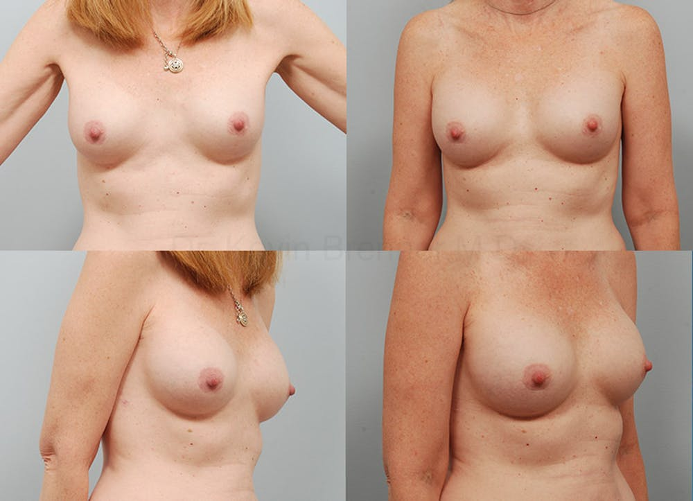 Breast Augmentation Gallery - Patient 1533510 - Image 1