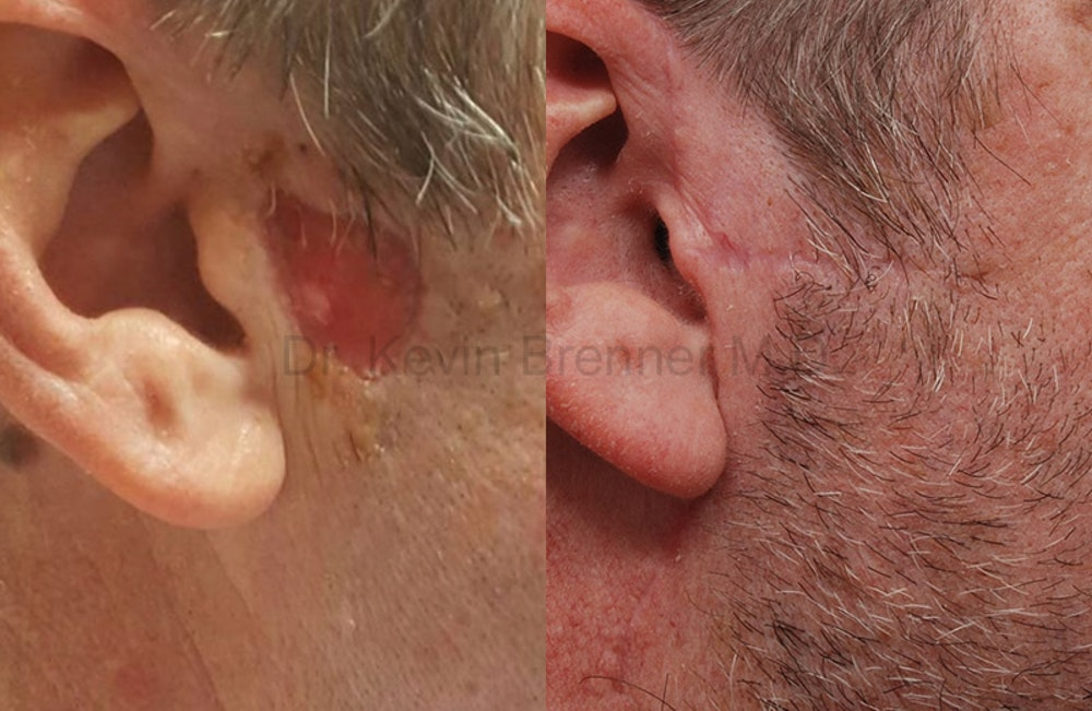 Skin Cancer Reconstruction Gallery - Patient 1533663 - Image 1