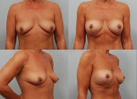 Breast Augmentation Gallery - Patient 1482318 - Image 1