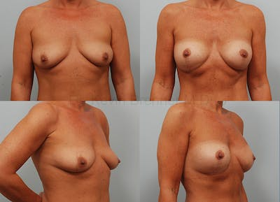 Breast Augmentation Gallery - Patient 1482318 - Image 53