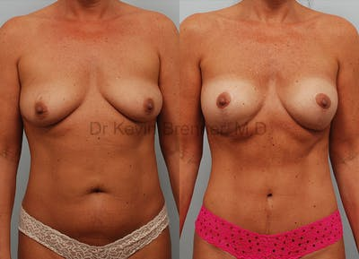 Mommy Makeover Gallery - Patient 1568349 - Image 12