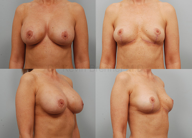 Breast Implant Removal Gallery - Patient 1789689 - Image 1