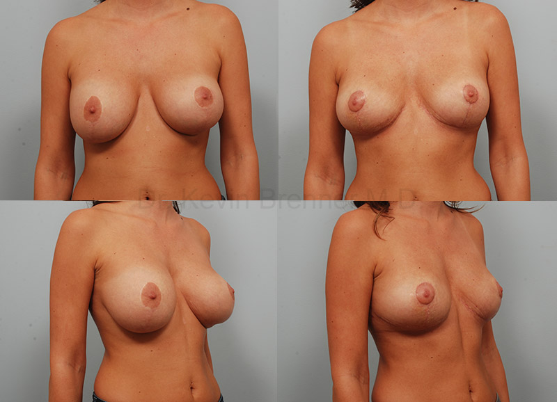 Breast Implant Removal Gallery - Patient 1789774 - Image 1