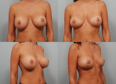 Breast Implant Removal Gallery - Patient 1789774 - Image 8