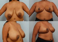 Breast Reduction Gallery - Patient 10131093 - Image 1