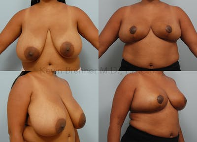 Breast Reduction Gallery - Patient 10131093 - Image 13