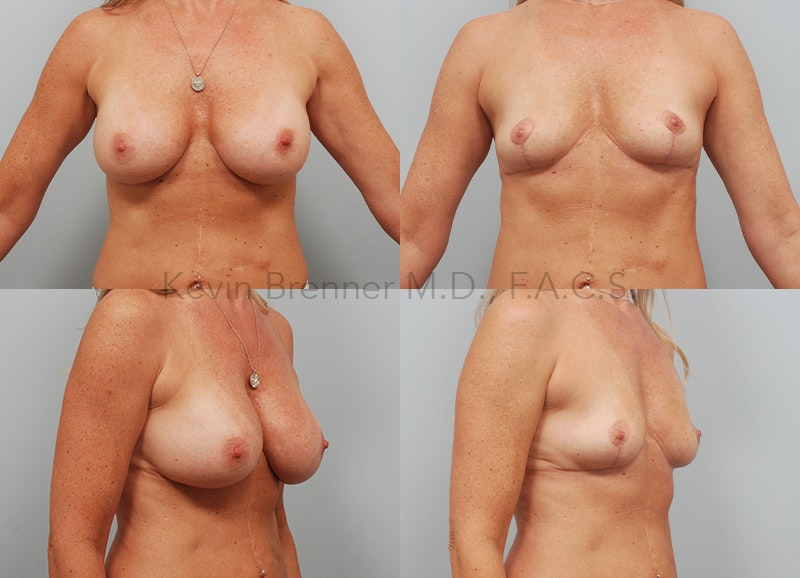 Breast Implant Removal Gallery - Patient 8030926 - Image 1