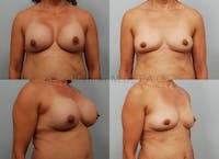 Breast Implant Removal Gallery - Patient 8030927 - Image 1