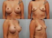 Breast Implant Removal Gallery - Patient 8031768 - Image 1