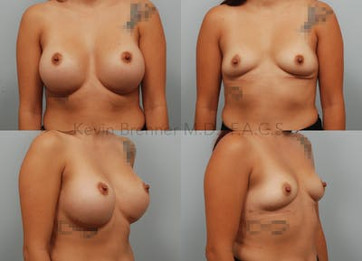Breast Implant Removal Gallery - Patient 8031768 - Image 11