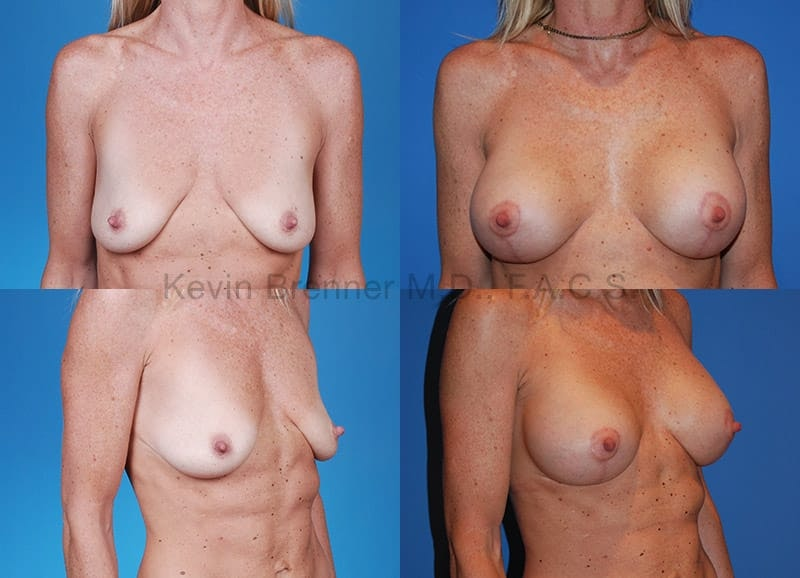 Breast Lift with Augmentation Gallery - Patient 10131253 - Image 1