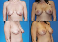Breast Lift with Augmentation Gallery - Patient 10131254 - Image 1
