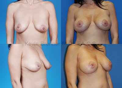 Breast Lift with Augmentation Gallery - Patient 10131254 - Image 2