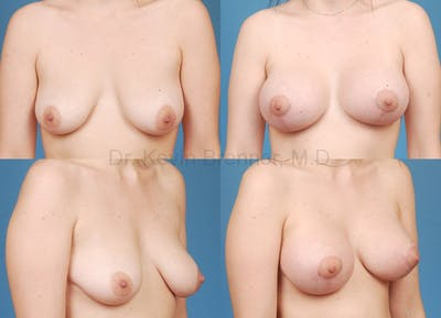 Breast Lift with Augmentation Gallery - Patient 10131256 - Image 1