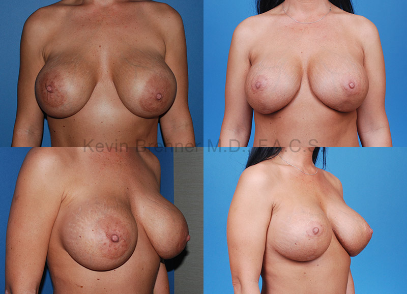 Breast Lift with Augmentation Gallery - Patient 10131257 - Image 1