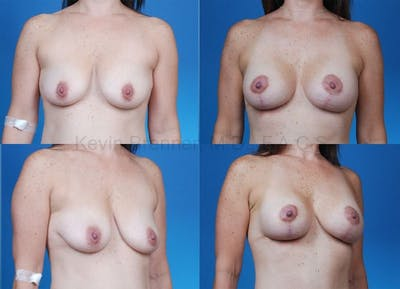 Breast Lift with Augmentation Gallery - Patient 10131258 - Image 1