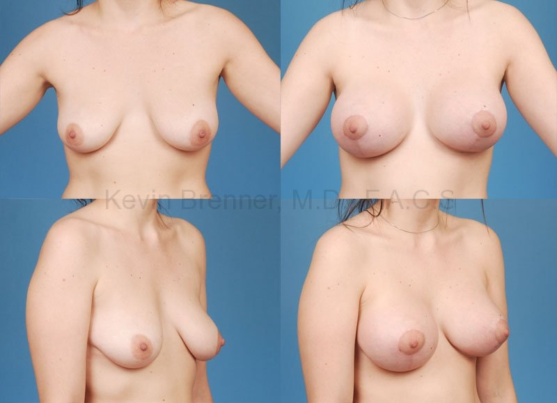 Breast Lift with Augmentation Gallery - Patient 10131260 - Image 1
