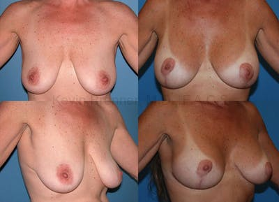 Breast Lift with Augmentation Gallery - Patient 10131261 - Image 9
