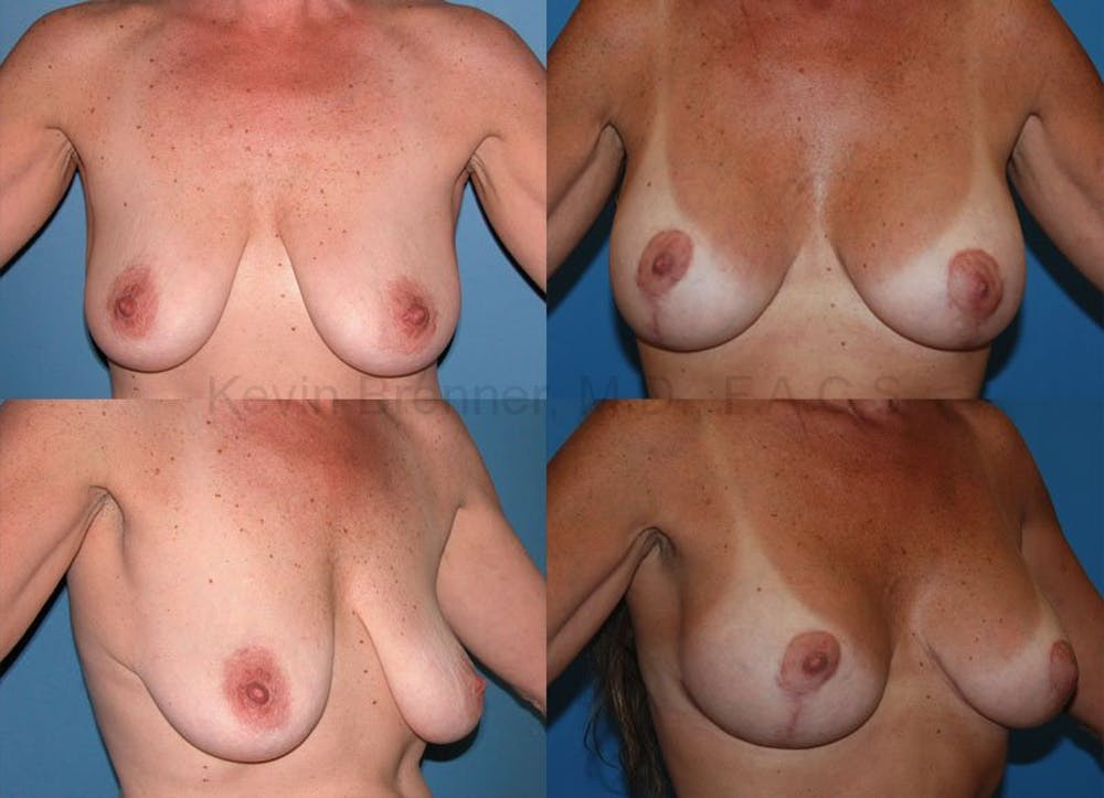 Breast Lift with Augmentation Gallery - Patient 10131261 - Image 1