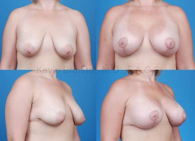 Breast Lift with Augmentation Gallery - Patient 10131262 - Image 10