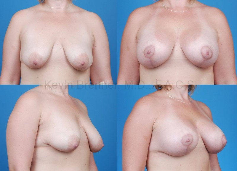 Breast Lift with Augmentation Gallery - Patient 10131262 - Image 1