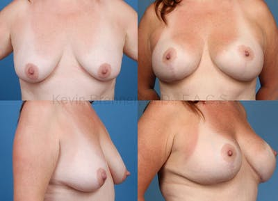 Breast Lift with Augmentation Gallery - Patient 10131263 - Image 1
