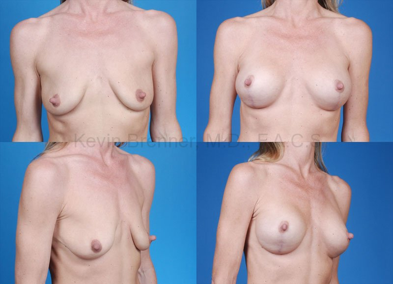 Breast Lift with Augmentation Gallery - Patient 10131264 - Image 1