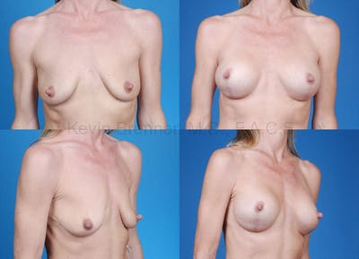 Breast Lift with Augmentation Gallery - Patient 10131264 - Image 12