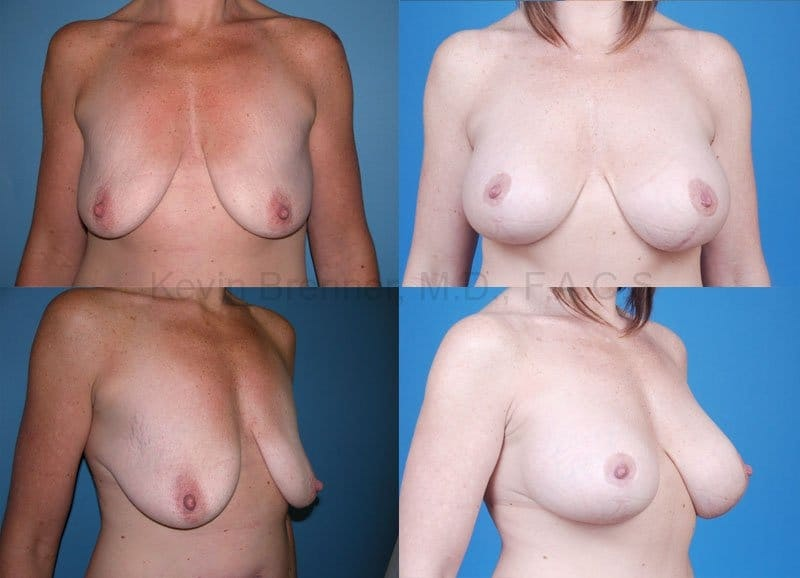 Breast Lift with Augmentation Gallery - Patient 10131309 - Image 1