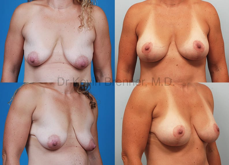 Breast Lift with Augmentation Gallery - Patient 10131312 - Image 1