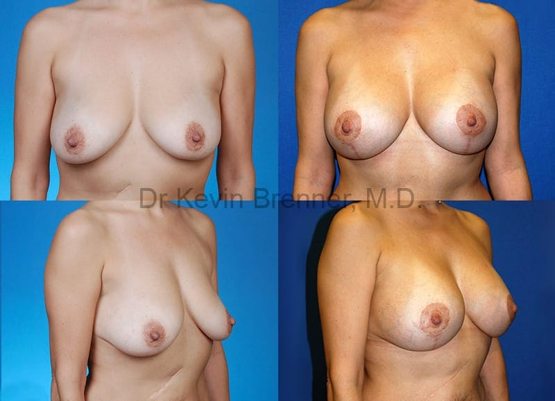 Breast Lift with Augmentation Gallery - Patient 10131313 - Image 1