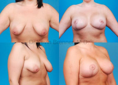 Tuberous Breast Gallery - Patient 10131334 - Image 2