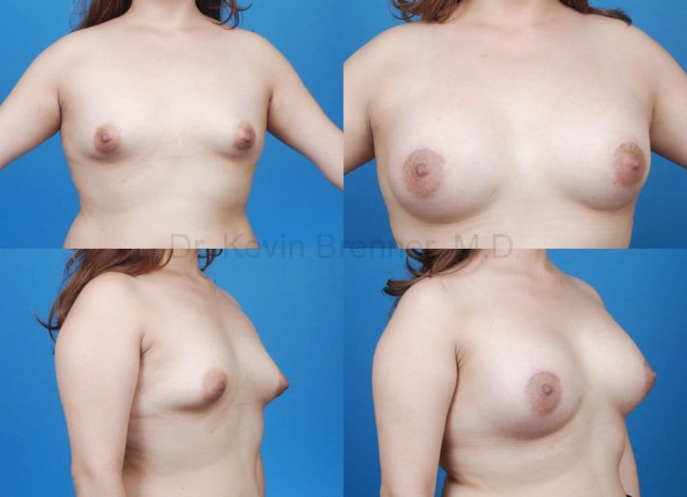 Tuberous Breast Gallery - Patient 10131335 - Image 1
